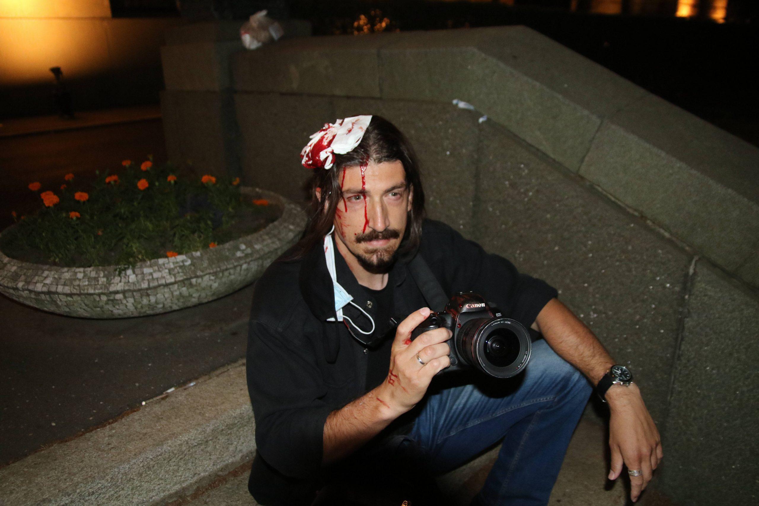 Serbia Journalist attacked